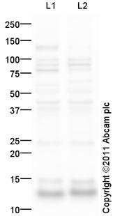 Western blot - Anti-Parvalbumin antibody (ab94362)
