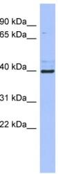 Western blot - Rex1 antibody (ab94399)
