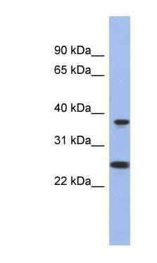 Western blot - MTRF1L antibody (ab94403)