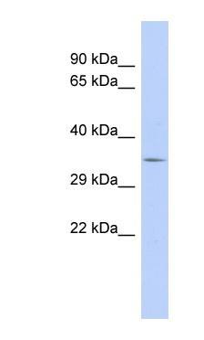 Western blot - RNF21 antibody (ab94404)