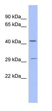 Western blot - ZNF575 antibody (ab94405)