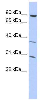 Western blot - KLHL5 antibody (ab94410)