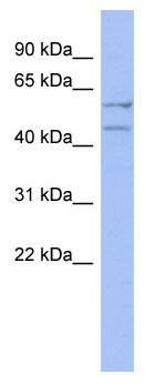 Western blot - Deleted in azoospermia 4 antibody (ab94412)