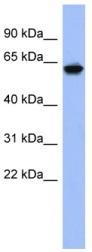 Western blot - KLHL8 antibody (ab94421)