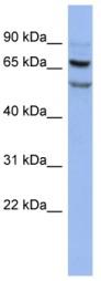 Western blot - FOXRED1 antibody (ab94422)