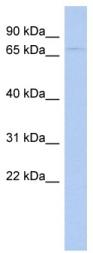 Western blot - LOC51057 antibody (ab94424)