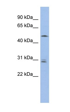 Western blot - SMAP1 antibody (ab94425)