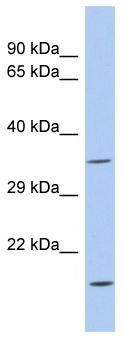 Western blot - ASPDH antibody (ab94433)