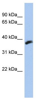 Western blot - CYB5RL antibody (ab94435)