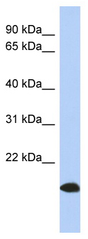 Western blot - ARL17B antibody (ab94438)