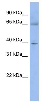 Western blot - ZNF302 antibody (ab94448)