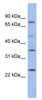 Western blot - PPM1K antibody (ab94452)