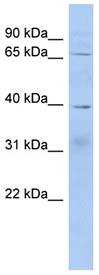 Western blot - KHDRBS2 antibody (ab94453)