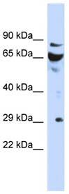 Western blot - DCUN1D3 antibody (ab94454)