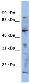 Western blot - RAB3IP antibody (ab94455)