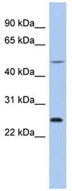 Western blot - CTRB1 antibody (ab94456)