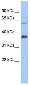 Western blot - RALY antibody (ab94457)