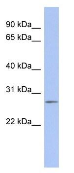Western blot - C14orf166 antibody (ab94463)