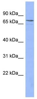 Western blot - PATZ1  antibody (ab94465)