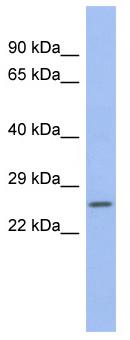 Western blot - ZNRF1 antibody (ab94467)