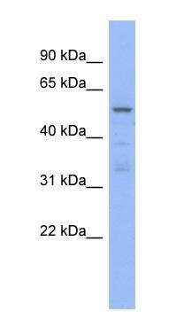 Western blot - TRIM5 alpha antibody (ab94470)