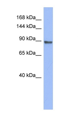 Western blot - PML Protein antibody (ab94471)