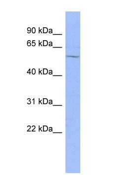 Western blot - DACH1 antibody (ab94472)