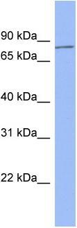 Western blot - HDX antibody (ab94475)