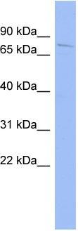 Western blot - HDX antibody (ab94476)