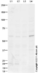 Western blot - FTO antibody (ab94482)