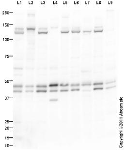 Western blot - ERK1 + ERK2 antibody (ab94484)