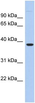 Western blot - FITM1 antibody (ab94487)