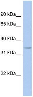 Western blot - FITM1 antibody (ab94488)