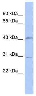 Western blot - SQSTM1 / p62 antibody (ab94489)