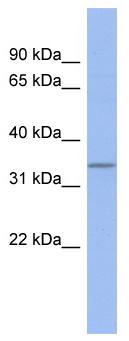Western blot - C17orf78 antibody (ab94491)