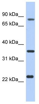Western blot - C17orf82 antibody (ab94492)