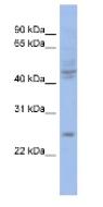 Western blot - PROP1 antibody (ab94500)