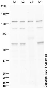 Western blot - Telomerase antibody (ab94523)