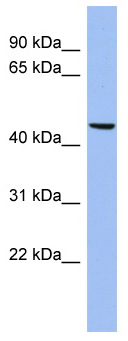 Western blot - Matrilin 3 antibody (ab94525)