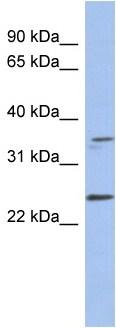 Western blot - Necdin antibody (ab94529)
