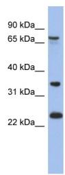 Western blot - TBC1D25 antibody (ab94530)