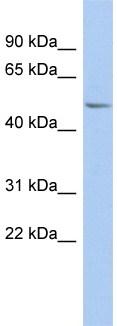 Western blot - PPOX antibody (ab94531)