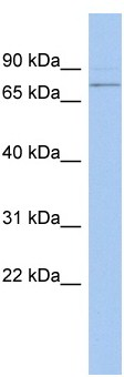 Western blot - PEX5 antibody (ab94532)