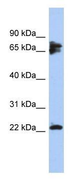 Western blot - Calcineurin B antibody (ab94535)