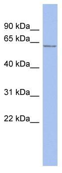 Western blot - ENC1 antibody (ab94561)