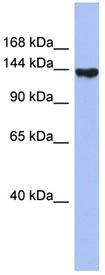 Western blot - Synaptojanin 2 antibody (ab94584)