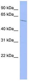Western blot - IGF2BP2 antibody (ab94594)