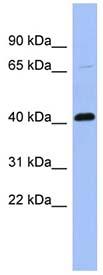 Western blot - Properdin antibody (ab94597)