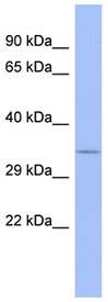 Western blot - FUSIP1 antibody (ab94600)