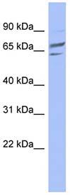 Western blot - PGM1 antibody (ab94601)